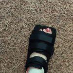 brokentoe